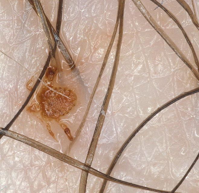 паразиты человеке фото видео