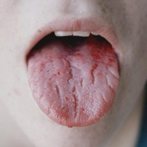 как понять аллергия или простуда у взрослого