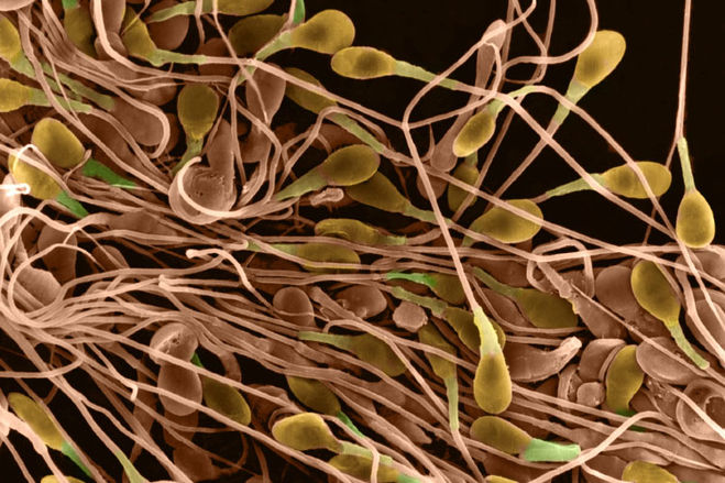 delenie-spermatozoidov-domashney-mishi