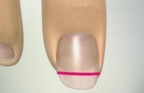 Как обрезать вросший ноготь на ноге