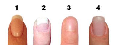Некрасивая форма ногтей как исправить