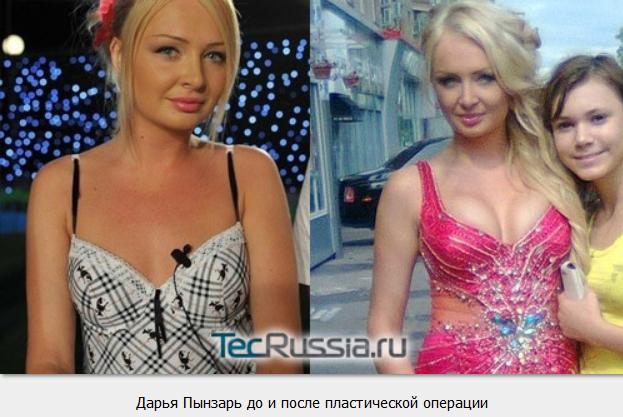 Где можно купить крем для увеличения груди в беларуси