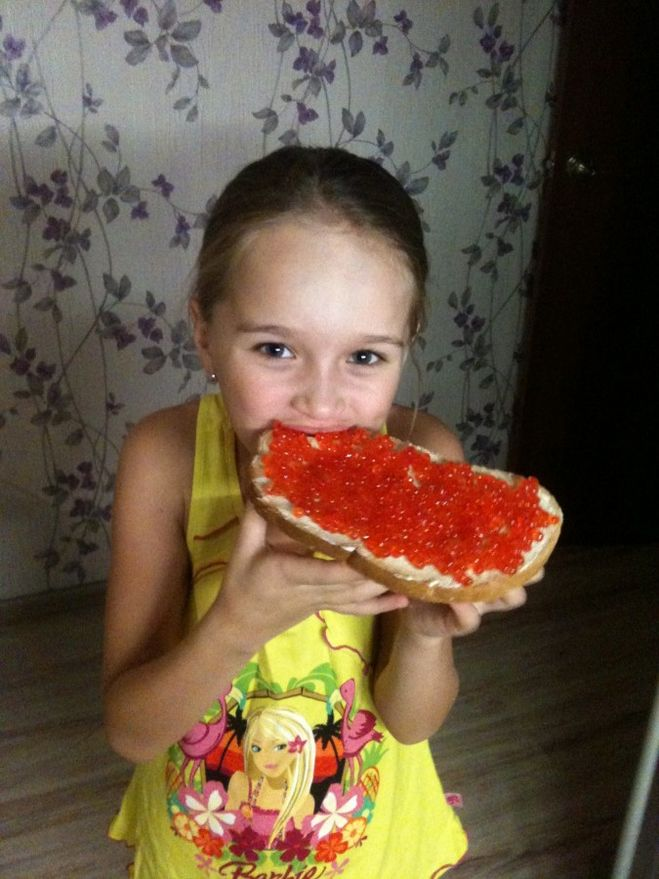 Остеопороз при сахарном диабете 1 типа